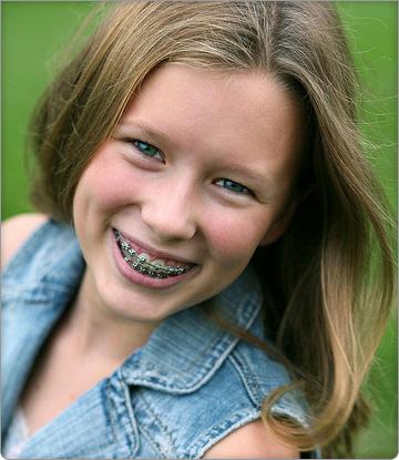 Ortodontia Criança